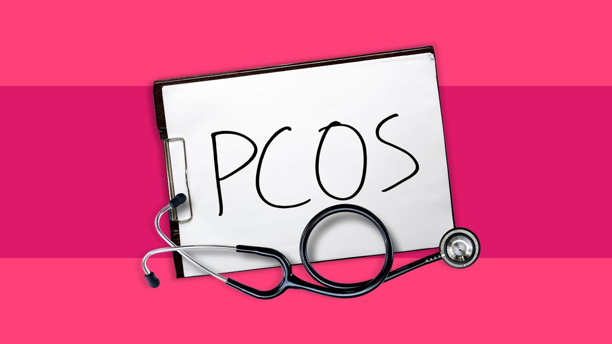 Kaalulangus ja PCOS