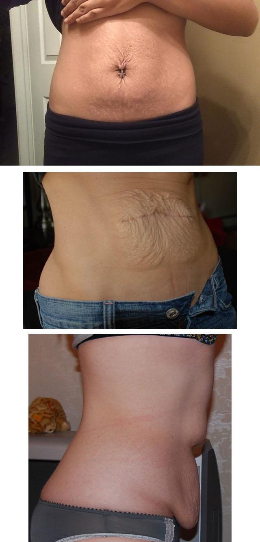 Kuidas pingutada uleliigse naha kaalulangus Sliming ravi kasu