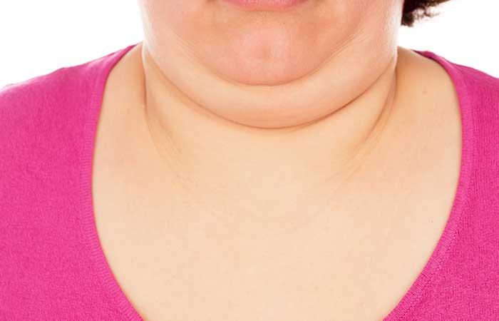 Kuidas murda rasva oma kehas Treppide masin rasva kadu