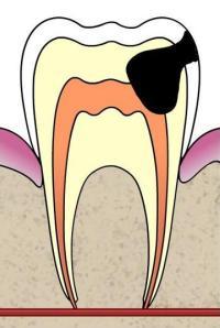 Pidev magus maitse suu kaalulangus Mis energiasusteem poletab rasva