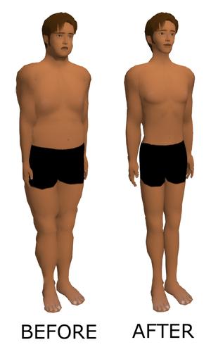 endomeetriumipolyp ja kaalulangus rasva poletamine 2 nadalat